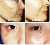 lesiones pigmentadas antes y después
