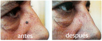 lesiones vasculares antes y después