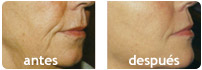 sculptra antes y después