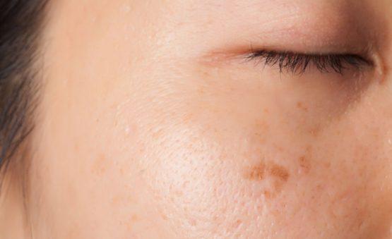 eliminar manchas del sol en la piel