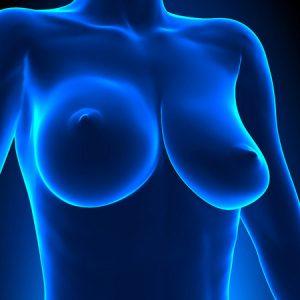 elevacion y remodelacion mamas caidas en Pamplona