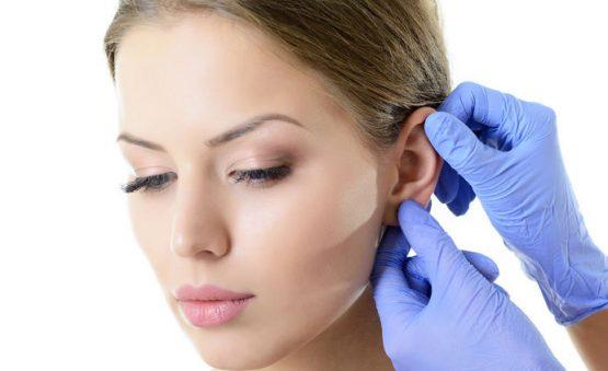 cirugía para corregir orejas de solplillo
