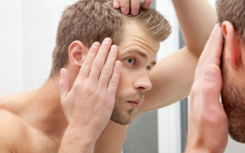 Hombre joven con alopecia